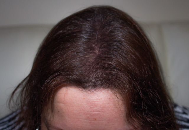 After Hair Fibres