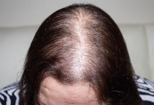 Before Hair Fibres